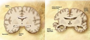Comparison of a normal aged brain and brain with Alzheimer's